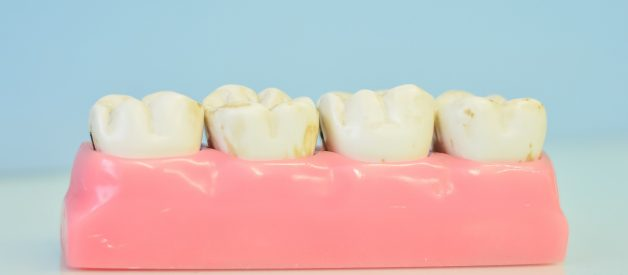 Implantacja zębów – na czym polega i ile kosztuje